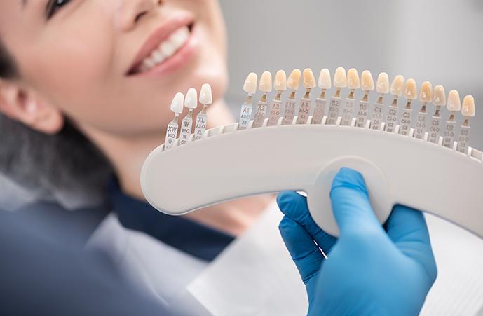 Crown Bridges best dentist epping dentist