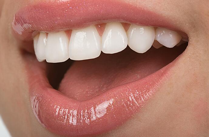 bonded composite veneers Dentist Epping Dentist