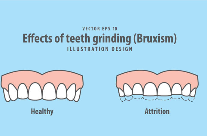 bruxism grinding Epping Dentist Epping