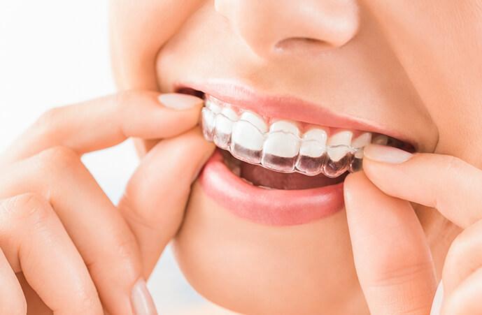 teeth invisalign Epping Dentist Epping