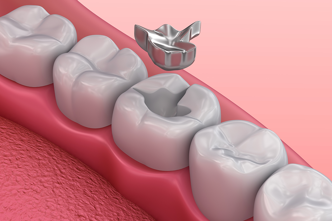 Which is better – composite or amalgam fillings?